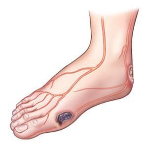 diabetes-foot